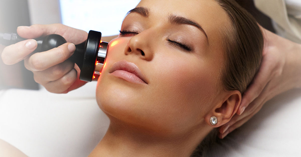 Radiofrekvencija lica